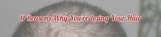 Losing Your Hair Header