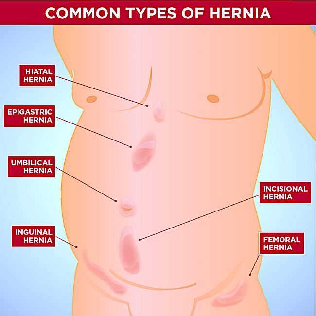 Hernia hiatala: cauze, simptome, tratament si remedii